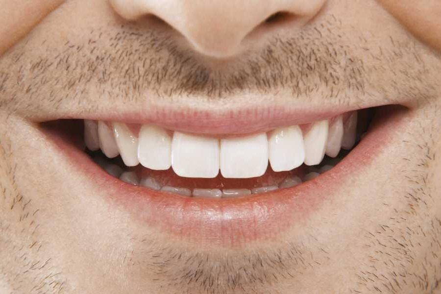 lach-met-witte-tanden